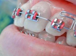 ortodonta