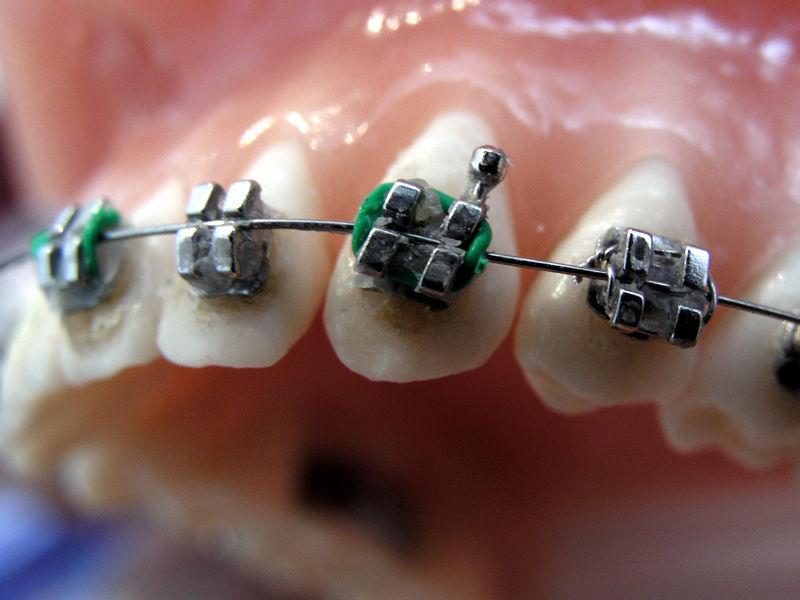 ortodonta1