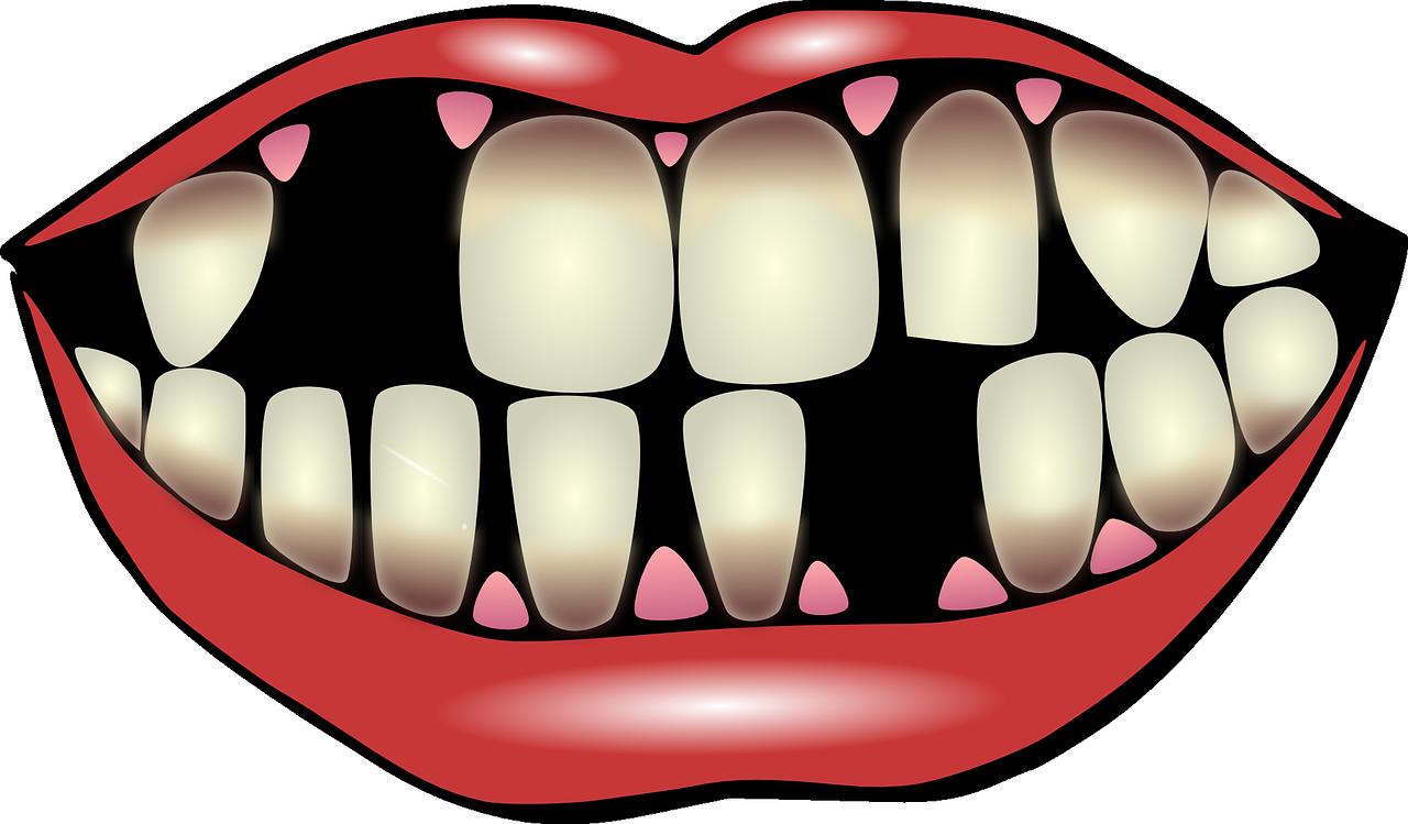 dental-hygiene-156103_1280