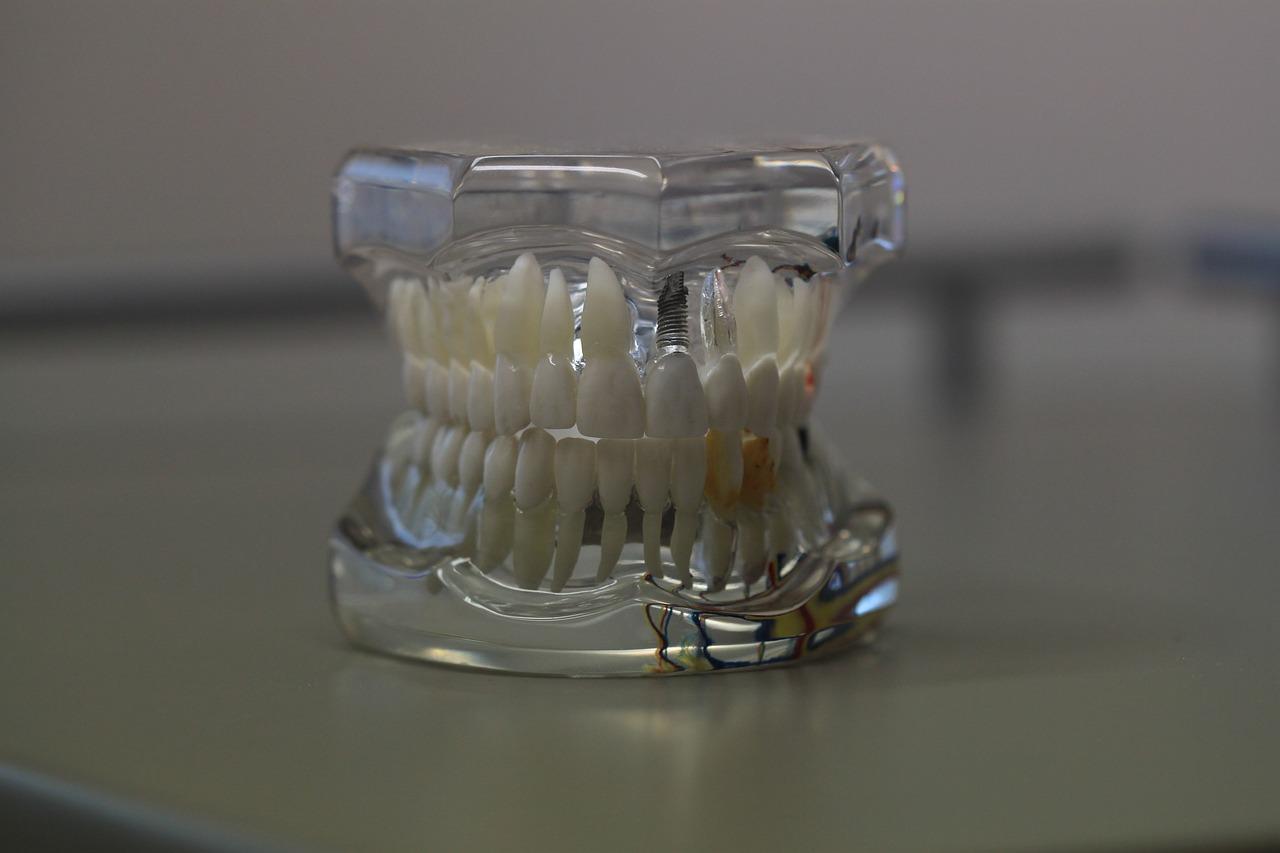 dentistry-668214_1280