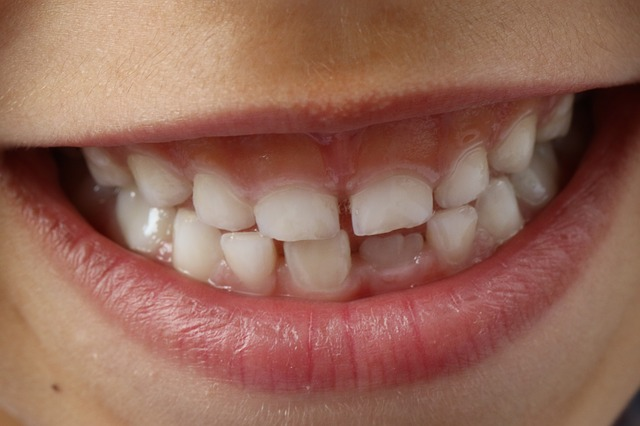 teeth-1743981_640