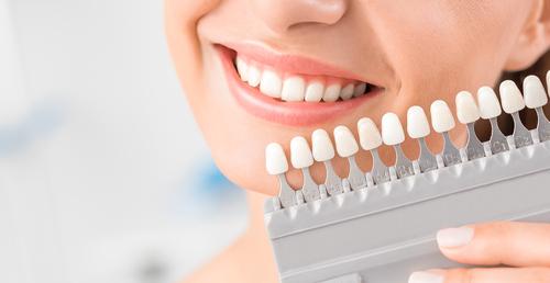 główne_Jak pozbyć się przebarwień na zębach – SunstarGUM